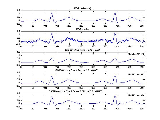 Example 2: ECG signal denoising with the SASS algorithm